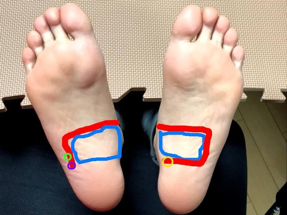 Foot-pressure-points-4