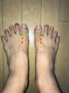 Foot-pressure-points-6